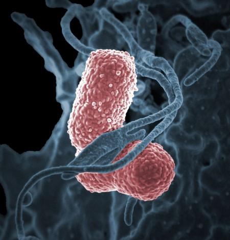 폐렴간균(Klebsiella pneumoniae) - 미국 국립알레르기전염병연구소(NIAID) 제공